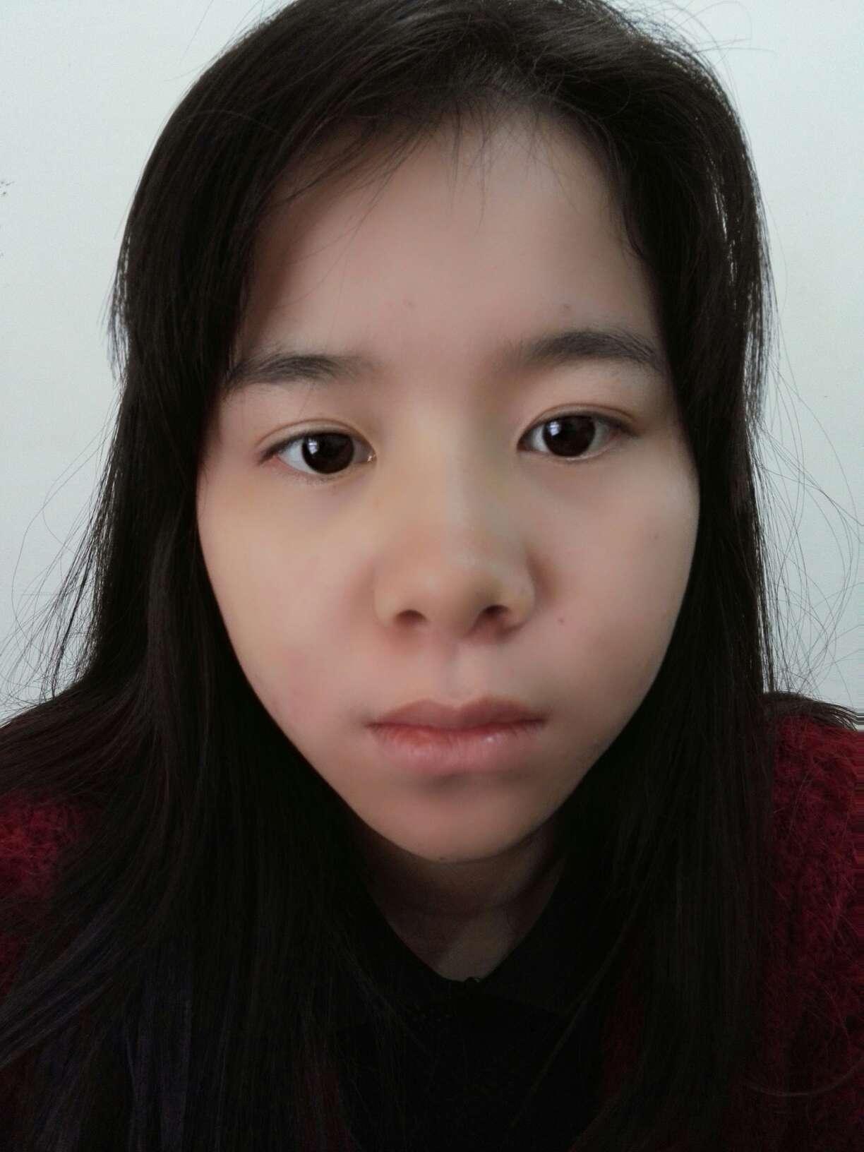 什么样的鼻子良好看,看我的鼻子要整吗脸上还有痘痘和雀斑在app可以先帮我回复吗