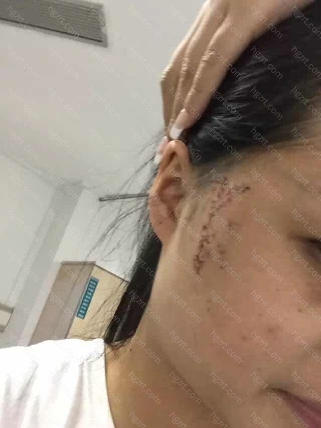 官方提示:哪里治疗疤痕比较好/怎么修复疤痕