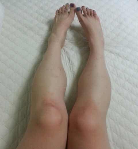 小腿肌肉发达怎么减,我是一名酒店服务行业的工作人员,因常年穿着高跟鞋站立而导致小腿肌肉异常肿大,看着也是特别别扭。