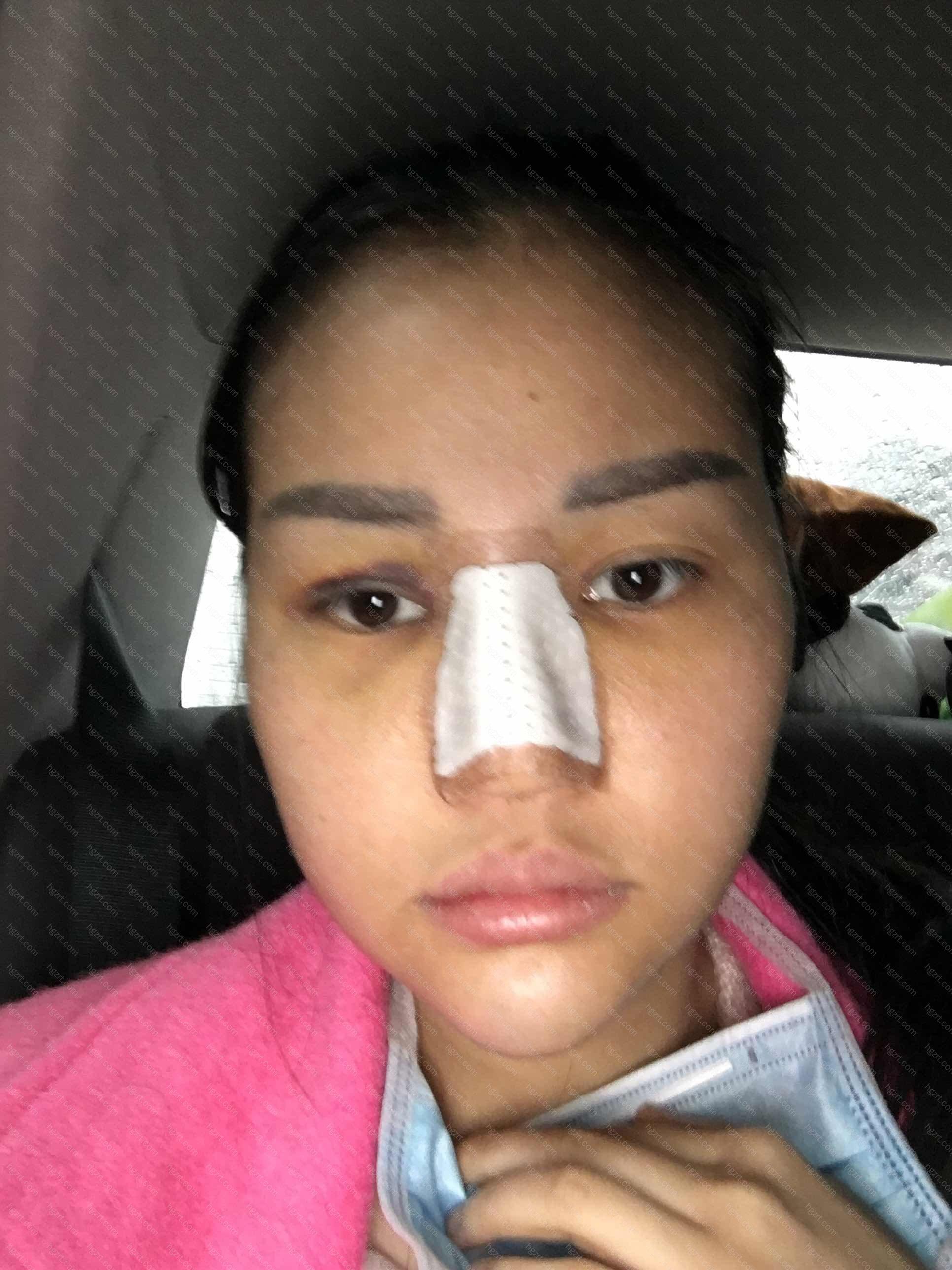 10、垫下巴术后数周内不要参加一些可使面部受到震动或打击的运动