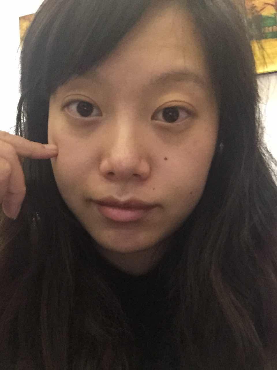 硅胶隆下巴后遗症有哪些,硅胶垫下巴,双眼皮