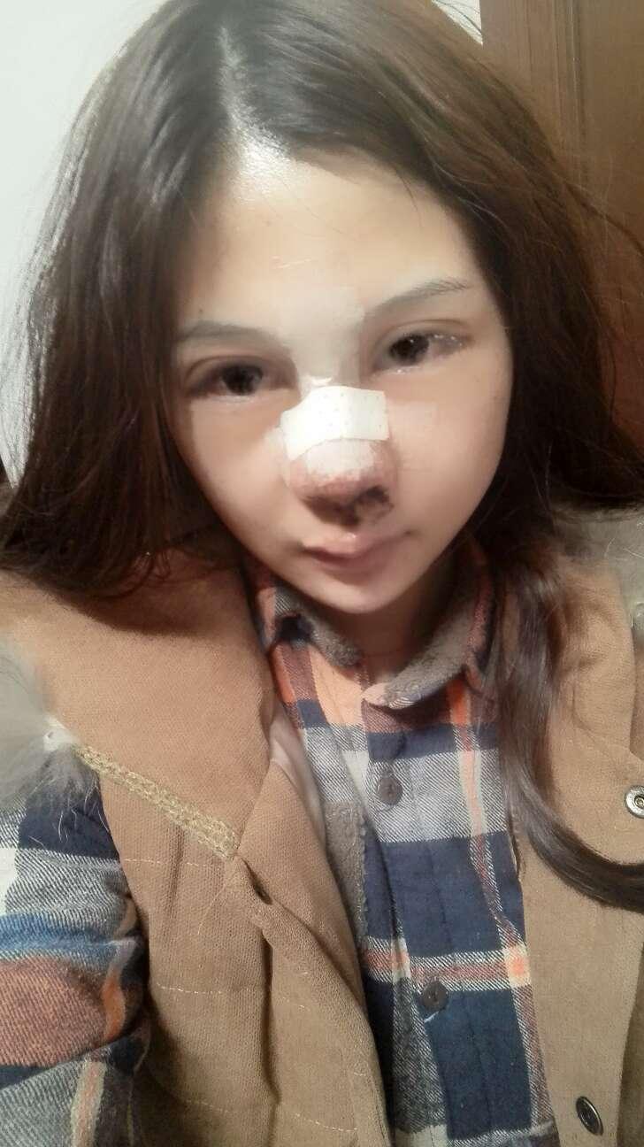 隆鼻手术几天拆线呢,一切的痛都值得,快点好起来