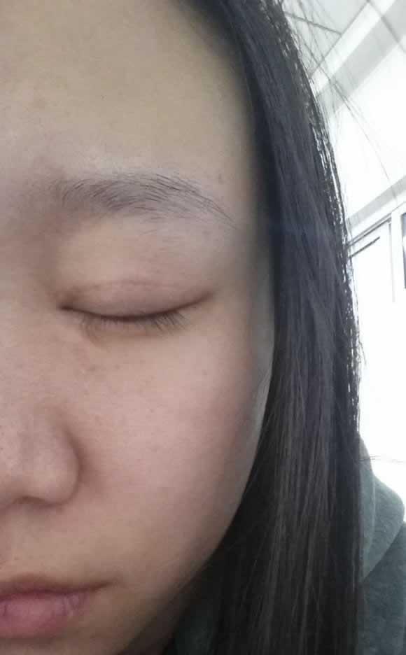 全切双眼皮恢复半年的情况效果前后对比案例。自我感觉恢复很好