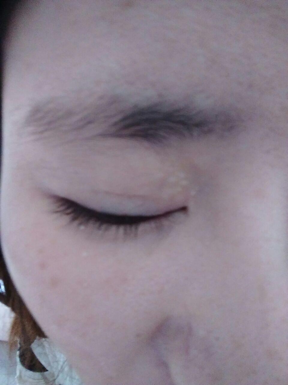 韩国双眼皮修复价格怎么样,两次修复失败,每天看见这样的自己就心烦,想做第三次,不知道那家能做我的眼睛,