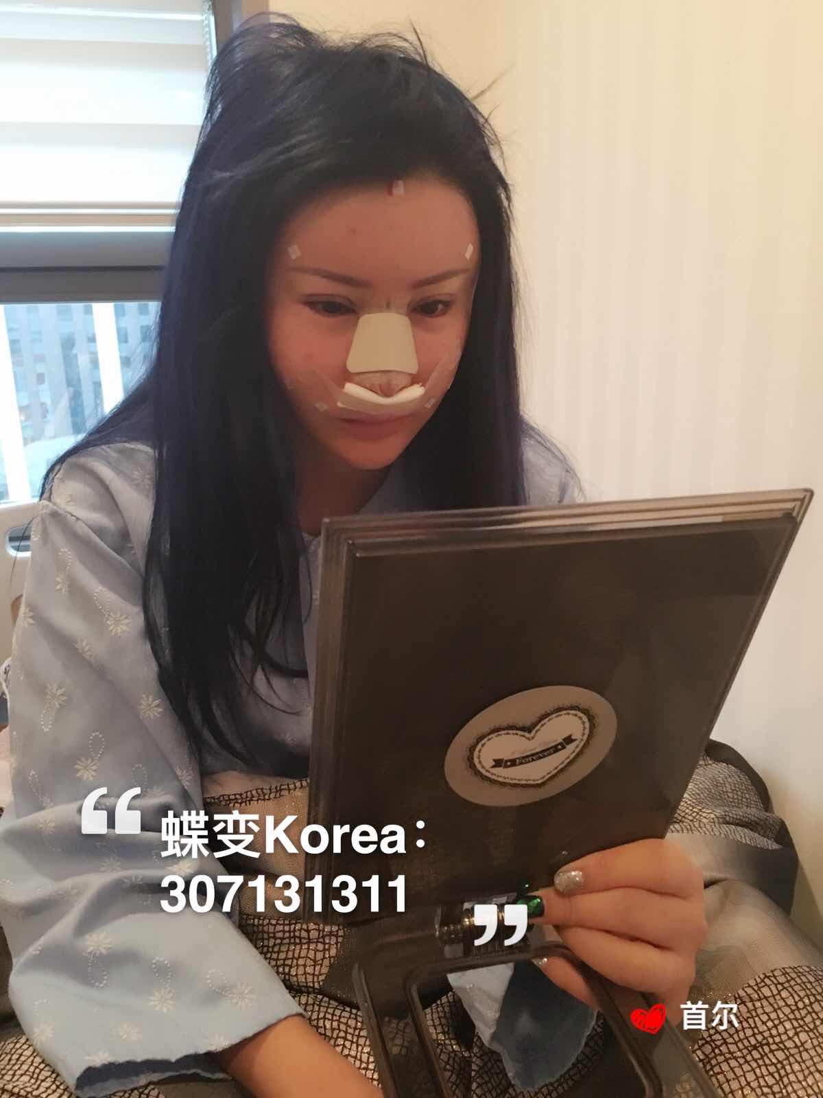 全切双眼皮修复手术,姐姐手术出来啦啦啦啦,做的双眼皮全切修复,开眼角,脂肪填充,鼻子,姐姐双眼皮做了6次了,大家看一点不肿吧,而且是全切的哦,柳院长棒棒的。