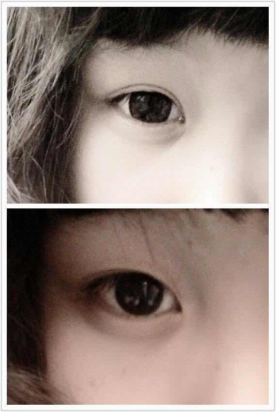 眼皮松弛适合割双眼皮吗?内双  一直都是贴双眼皮贴,但是贴出来的这个形状一直都不太满意 眼睛有点圆