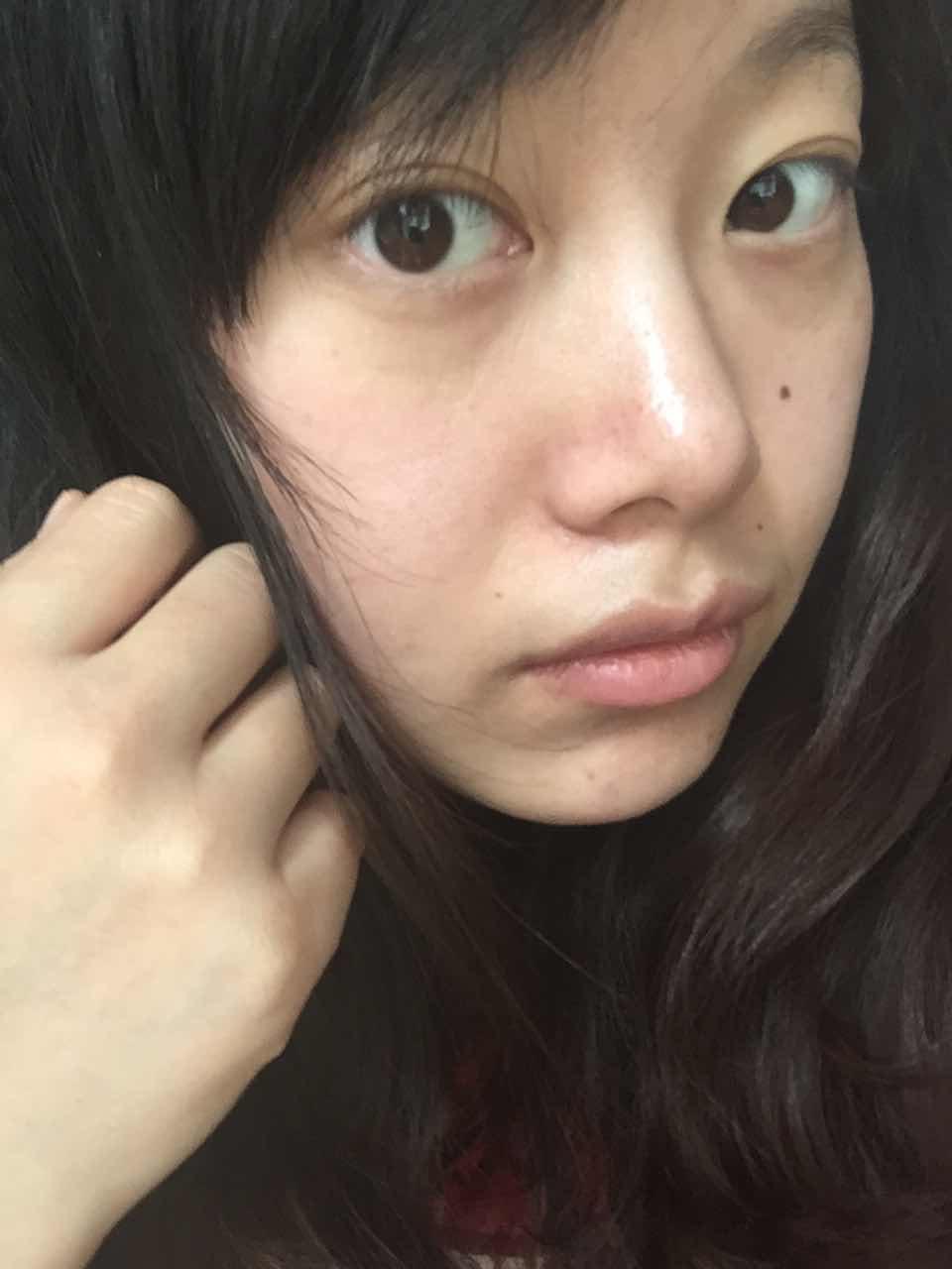 双眼皮消失的原因,为啥我割的双眼皮一会双,一会消失求解d
