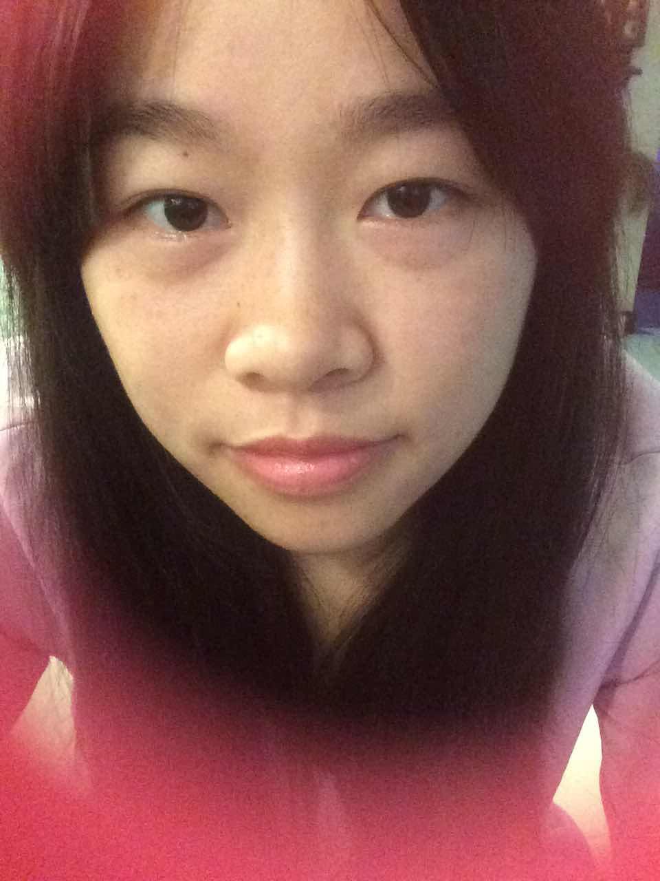 双眼皮哪里做良好,天津哪些整形医院做的比较好?我像做双眼皮