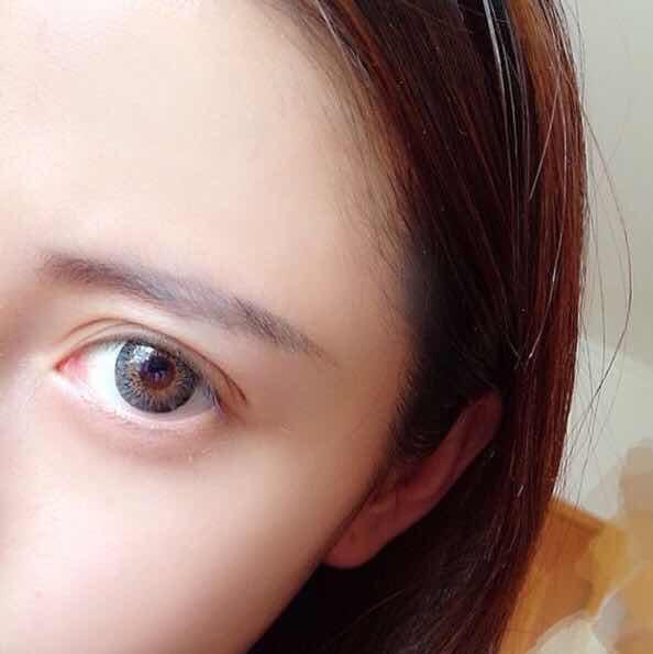全切双眼皮手术长期吗?这种是哪种?上全切嘛?心里长草长得不行了,好喜欢这种眼睛!