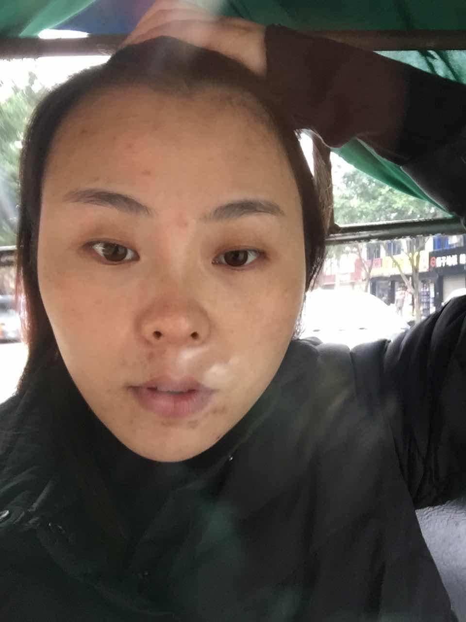 做完双眼皮手术后要注意那些?每一个女孩子都是爱美的,我也不例外,想要变得更美,更耀眼。