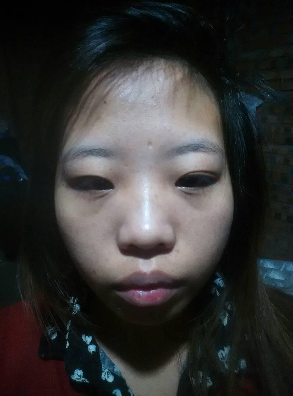 肿眼泡怎么做双眼皮效果好?那么丑的,都需要哪些改变呢,唉!
