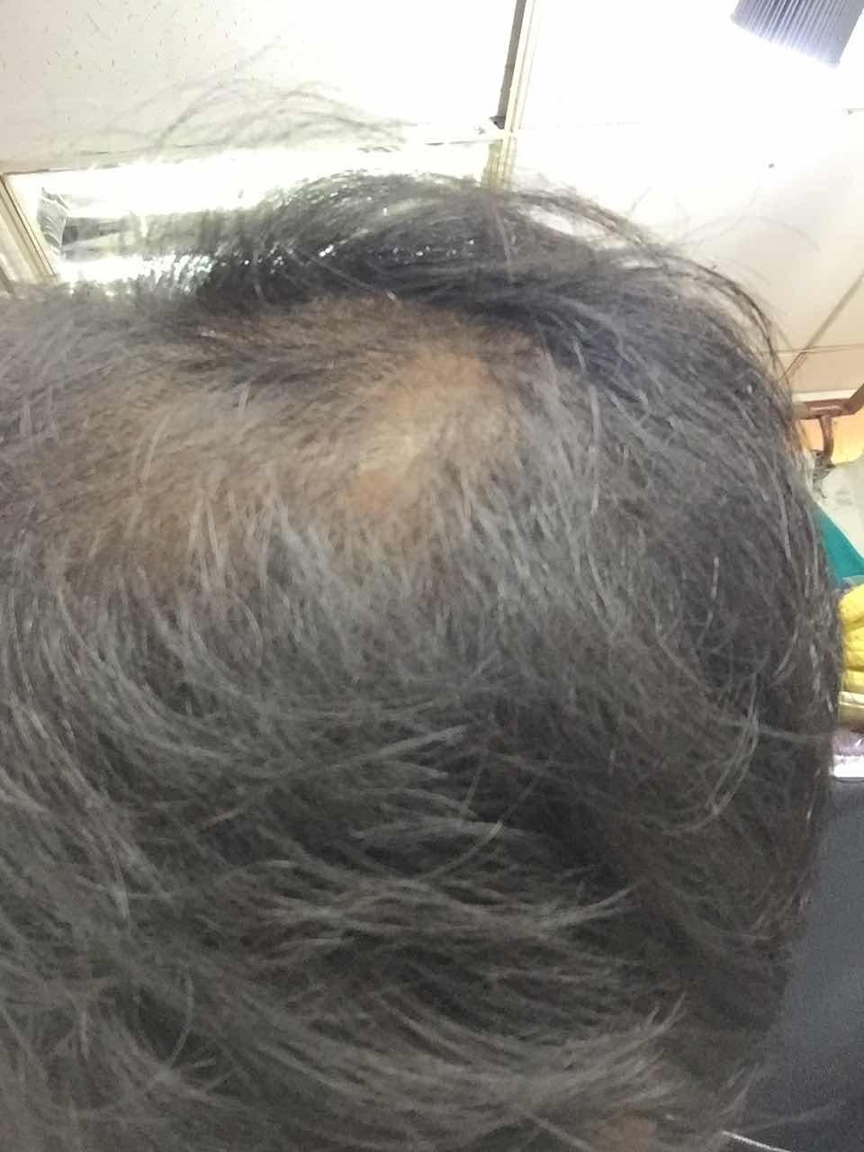 想做头发细胞移植,谁做过,植发效果怎么样?靠谱吗?被脱发折磨的不行了。