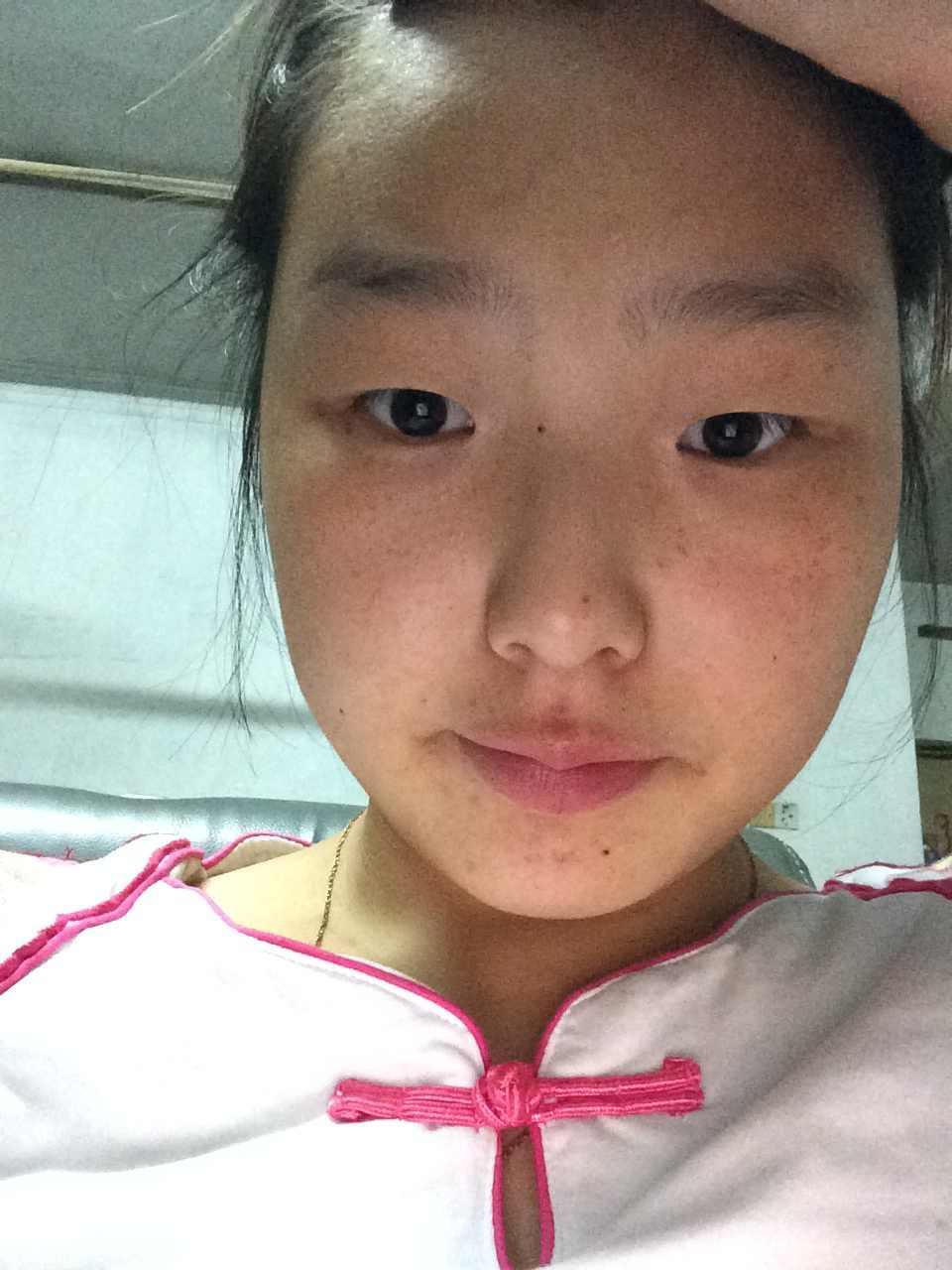 做韩式双眼皮效果好吗?还是做埋线的,已经满十八岁了,父母也支持呢,想改变改变。