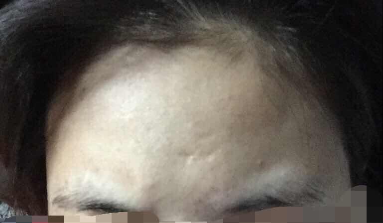 激光治疗痘坑痘印的效果怎么样?这个额头还有眉肌还有救么,看着真是糟心的很。