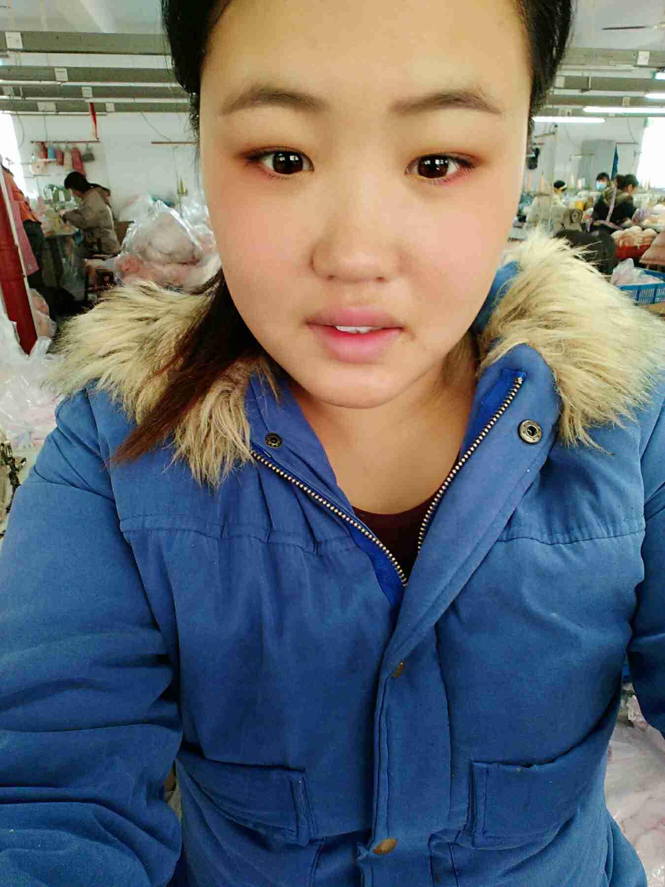 想做鼻综合手术,据说逆袭变美都靠它!脸上的额脂肪看起来还是满满的,这个比较满意。