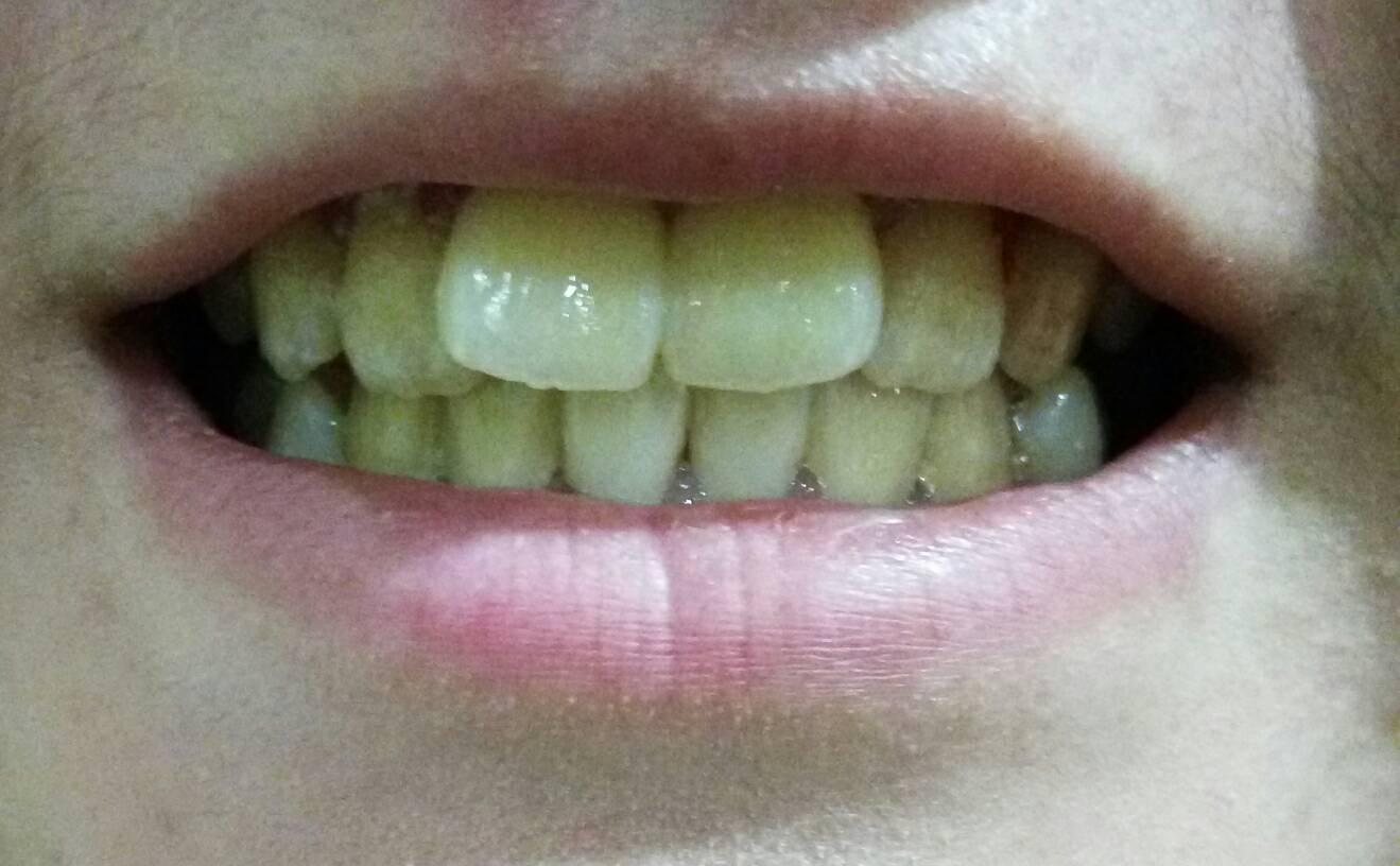 门牙歪了怎么矫正?前面两颗门牙歪,要整齐的方案,以及牙齿美白的方案!