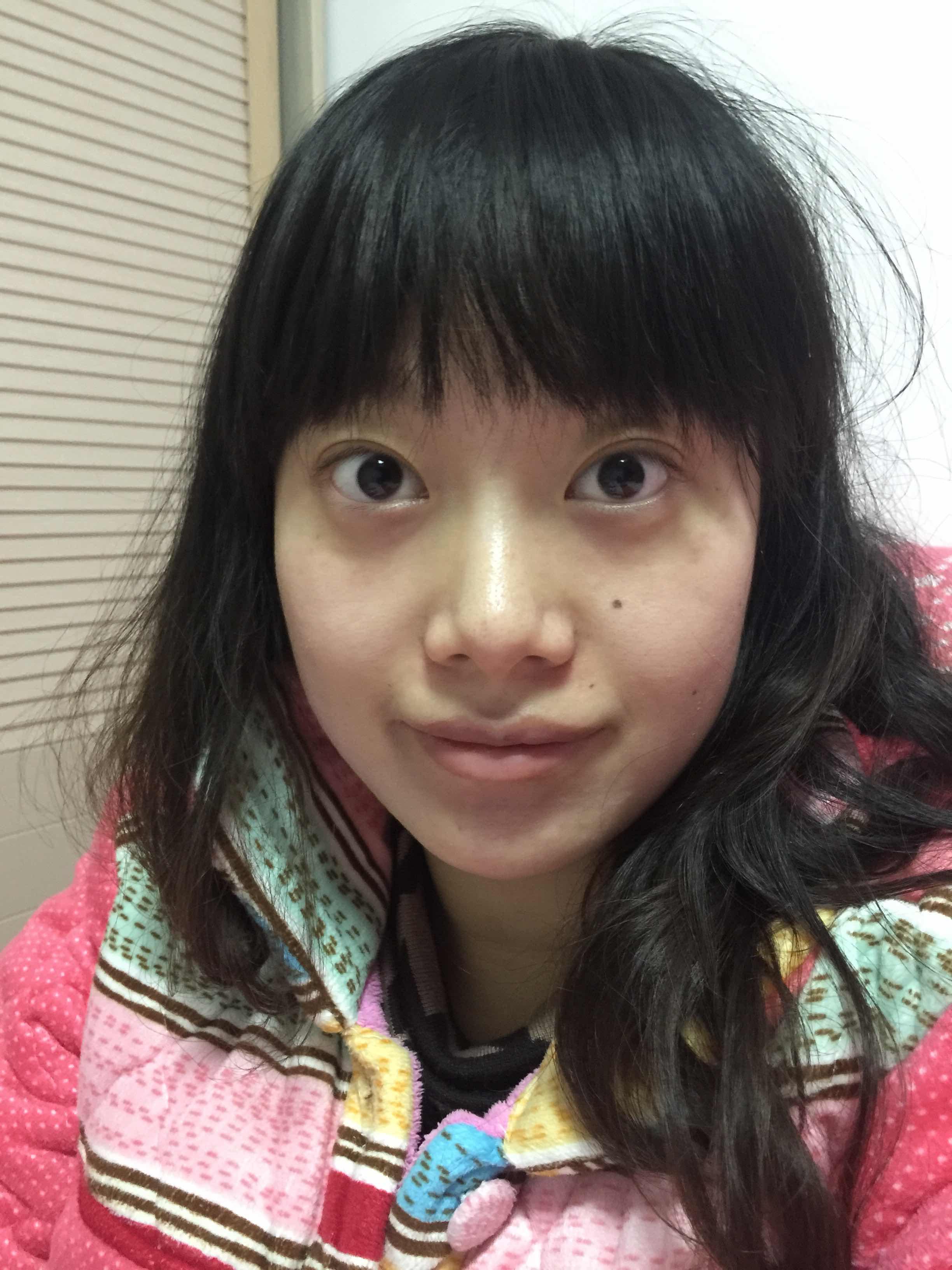割双眼皮后如何消肿?ps:为什么没男生喜欢我,是因为我太丑了吗,好想谈恋爱