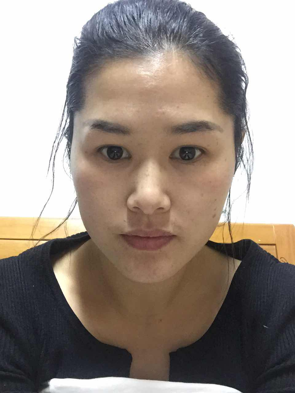 割双眼皮手术后,多久可以化妆?该整那些地方?脸型暂时不考虑,还没有那样的勇气