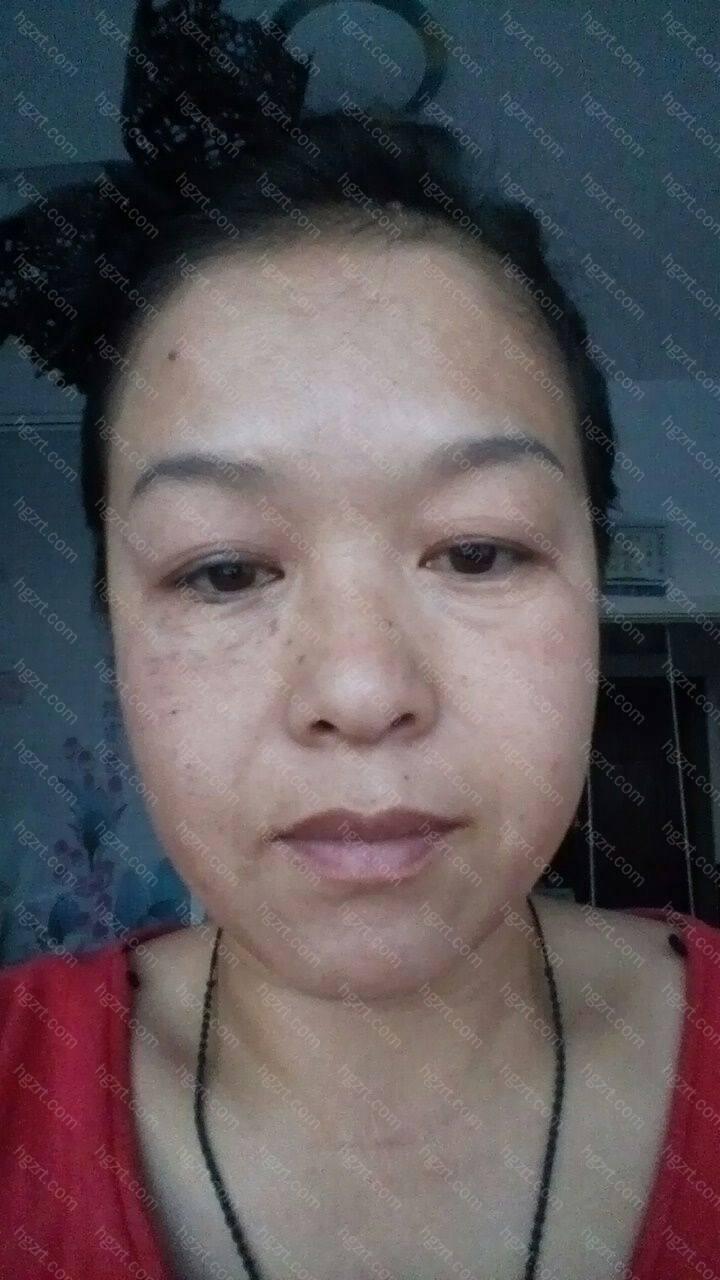 额部皱纹是由于额肌(形成抬头纹)、皱眉肌(眉间纵纹)、降眉肌(鼻根横纹)的收缩以达面部表情所致