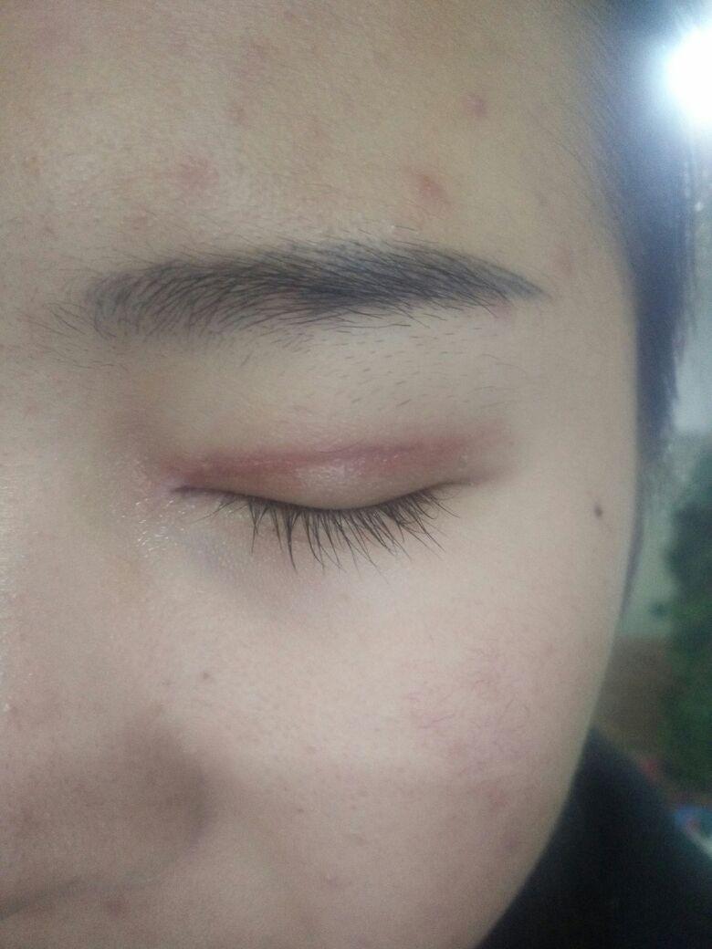 双眼皮术后注意事项及怎样护理?双眼皮伤口为什么这么红,好害怕!