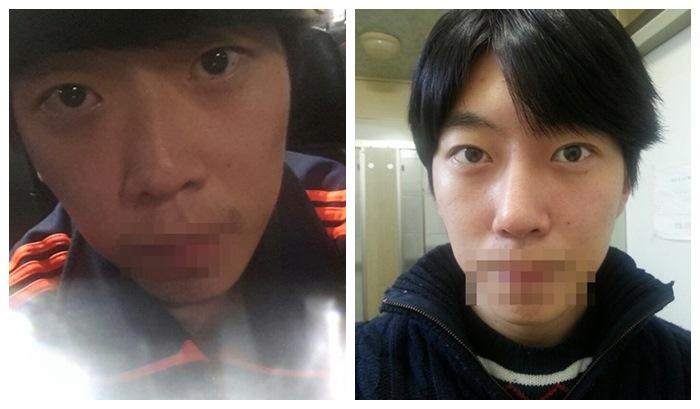 眼肌矫正是改眼型吗韩国美佳整形医院 男性鼻子整形和眼肌矫正,术前