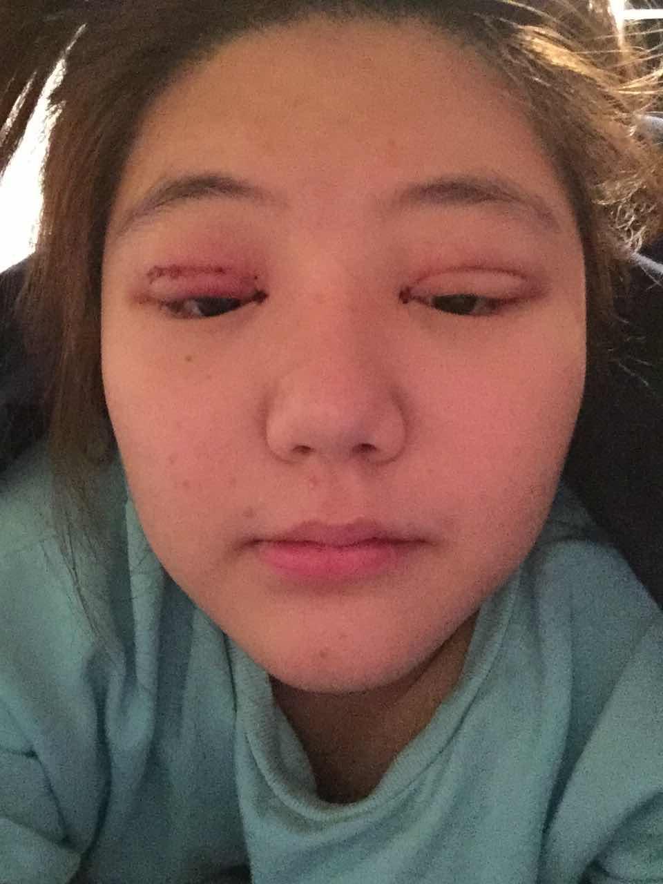 雙眼皮手術first天案例,剛做完這樣。