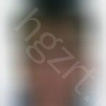 烧伤疤痕如何去除,烧伤有很长时间了,应该怎么去除