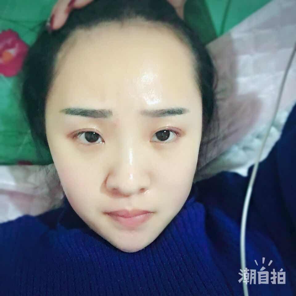 发际线太高头发移植怎么样,先整鼻子还是发际线呢?只能选一个