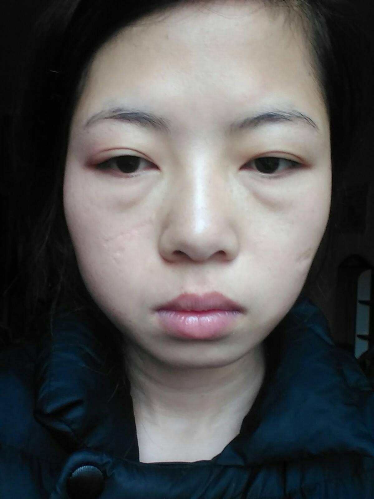 什么手术祛疤效果好,去疤效果,请懂行的人告知