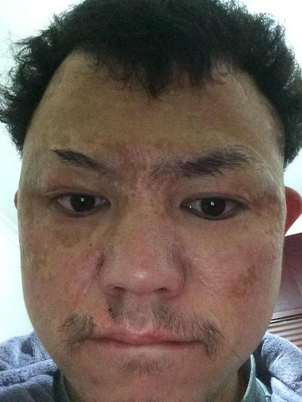 怎样让疤痕淡化,大家看看我这个样子应该怎么整,整哪里