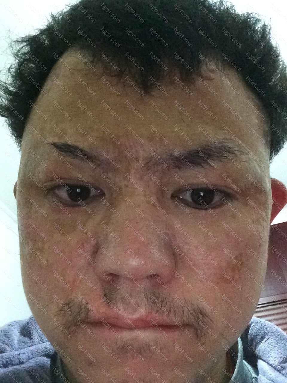 给疤痕上精油的时候可千万别福泽没有疤的肌肤了