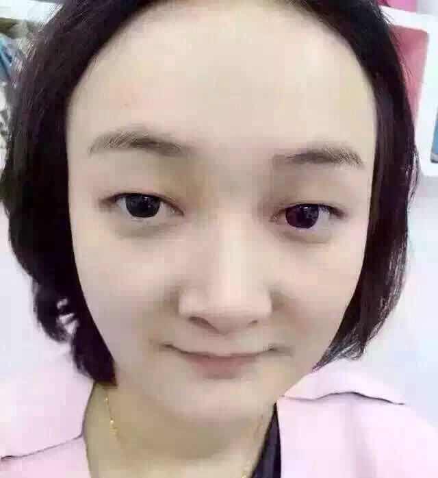 纳米无痕双眼皮的原理是什么,刚做好的双眼皮!纳米无痕!