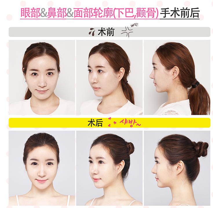 韩国面部轮廓整形效果,美佳整形模特哦 !!!