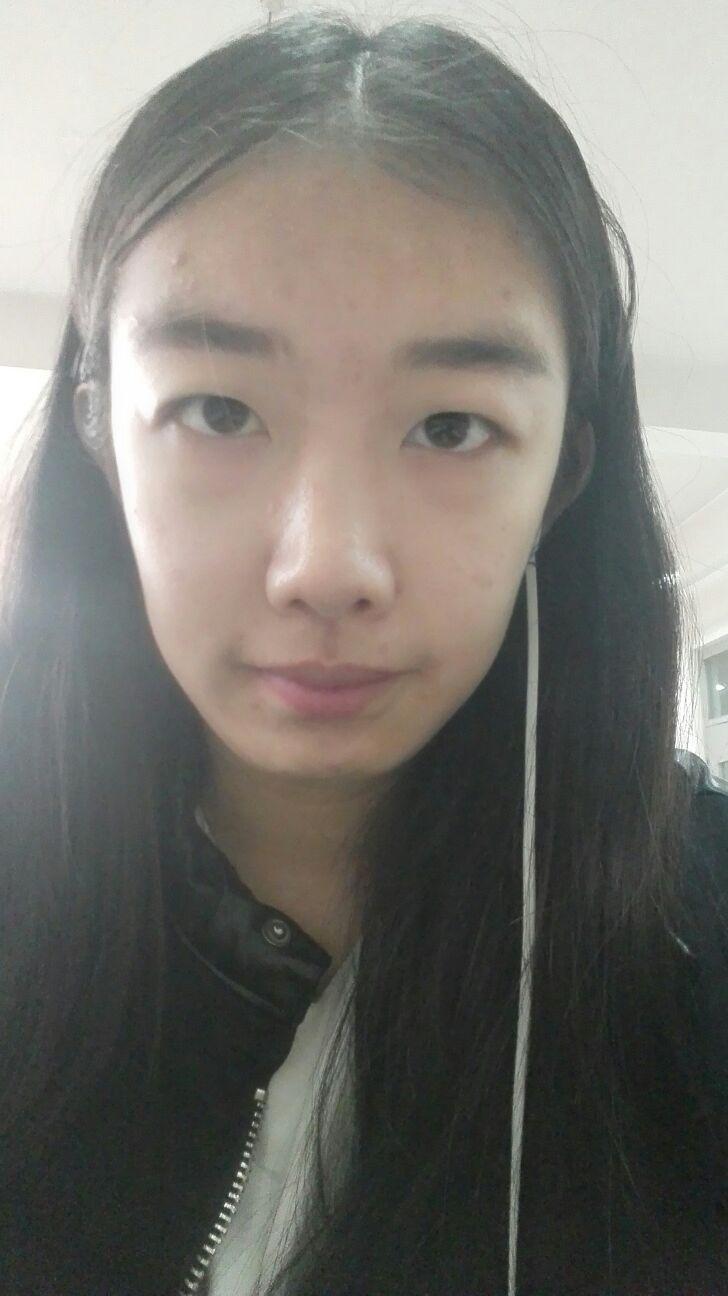 双眼皮手术那种好处多,我想做个双眼皮,自然有神就行,不用太夸张