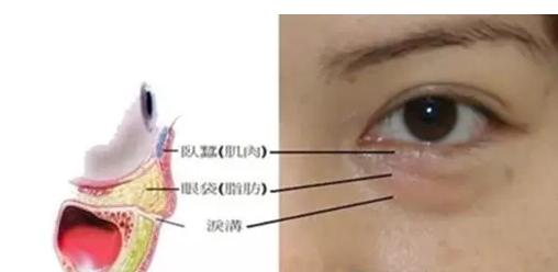 泪沟是什么样的,何谓泪沟?泪沟是指由内眼角开始出现在下眼睑靠鼻侧的一条凹沟,有的人甚至可延伸到脸颊。由于泪沟的凹陷与周围皮肤的对比映衬,使下睑组织看起来有些臃肿、凸出,由此很容易被误认为是眼袋,但其实那只是泪沟变深给人的错觉