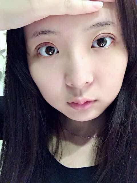 埋线双眼皮好嘛,我爱现在的自己,在南京维多利亚花2千多做的双眼皮,很喜欢