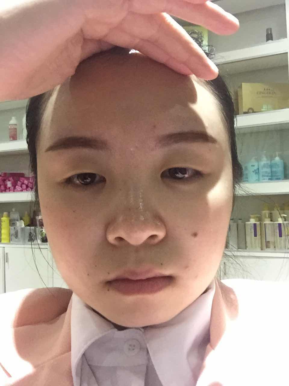 下眼睑外翻手术是什么样的,我觉得我很多地方都需要整,眼睛,下巴,鼻子,还有下巴两边