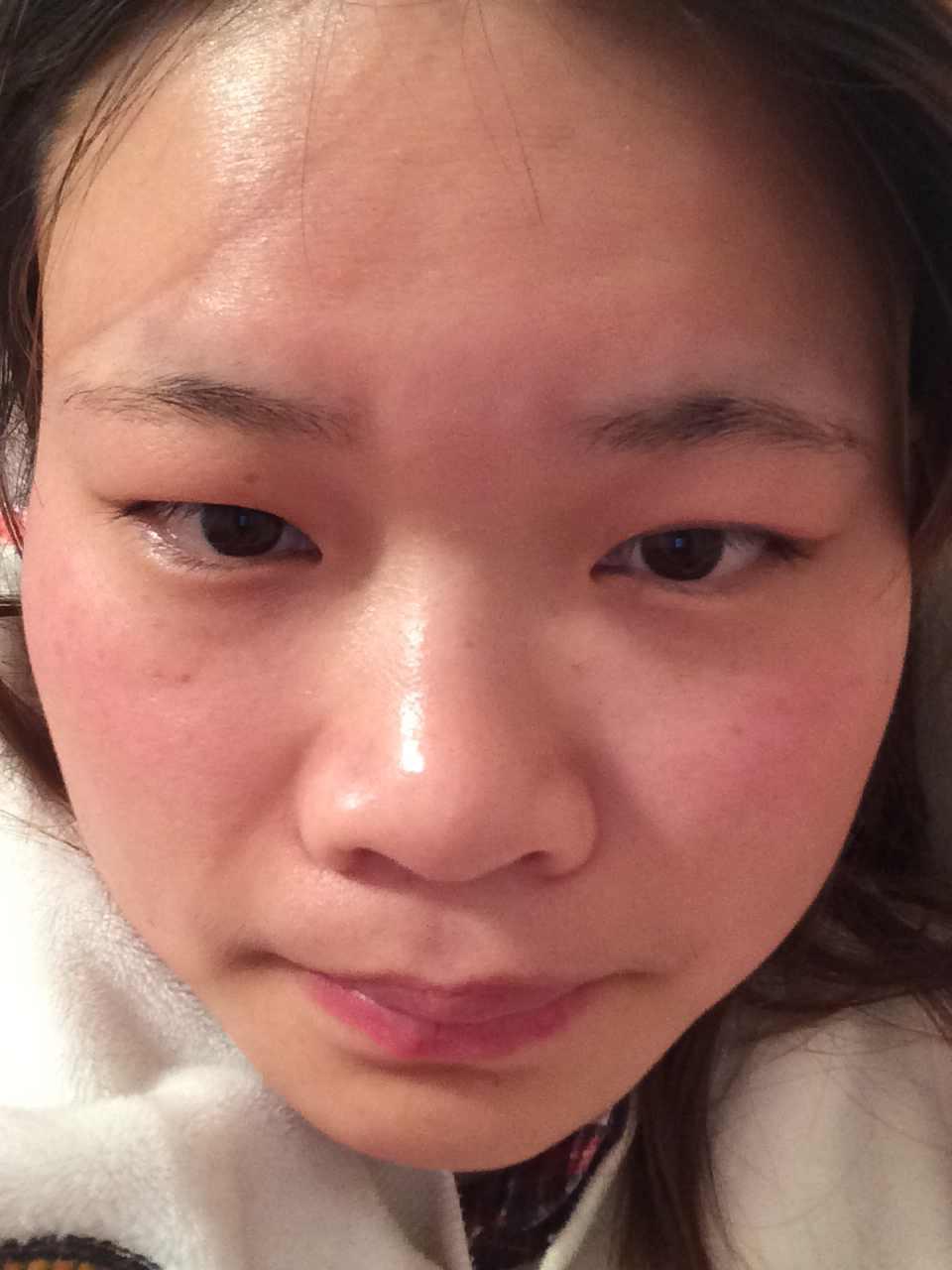 鼻头肥大整形价格多少钱,想变美不知道应该怎么做