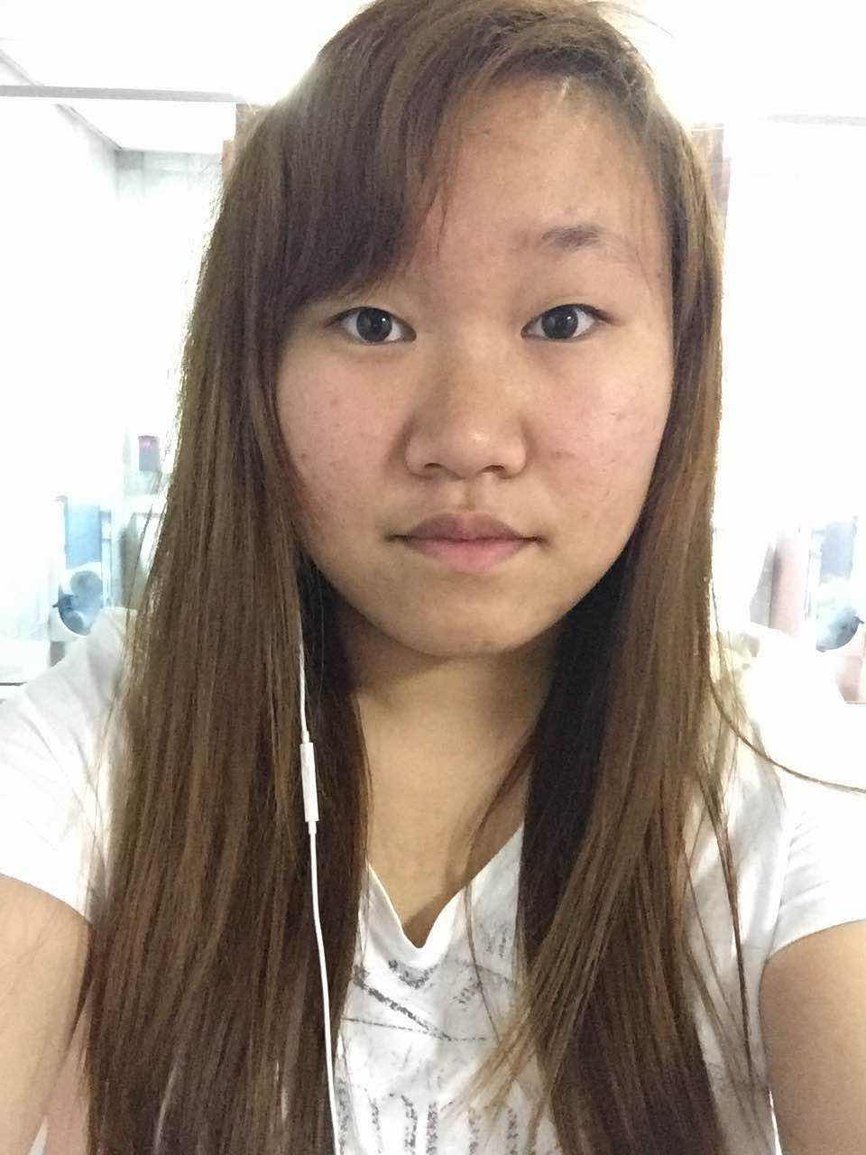 面部吸脂有哪些后遗症,可不可以做,脸肥,皮肤也不好