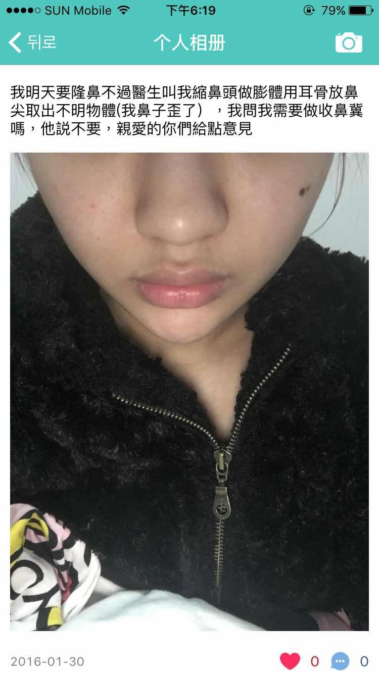 膨体隆鼻危害是什么,如圖所說,我应该做膨体吗?