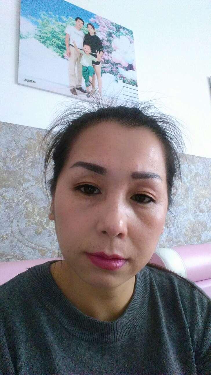 埋线双眼皮的危害有哪些,10几年前做的埋线双眼皮,现在右边恢复原形了,感觉一只眼大,一只眼小,还有额头拉皮也恢复原形了,请问你们地址在哪里?
