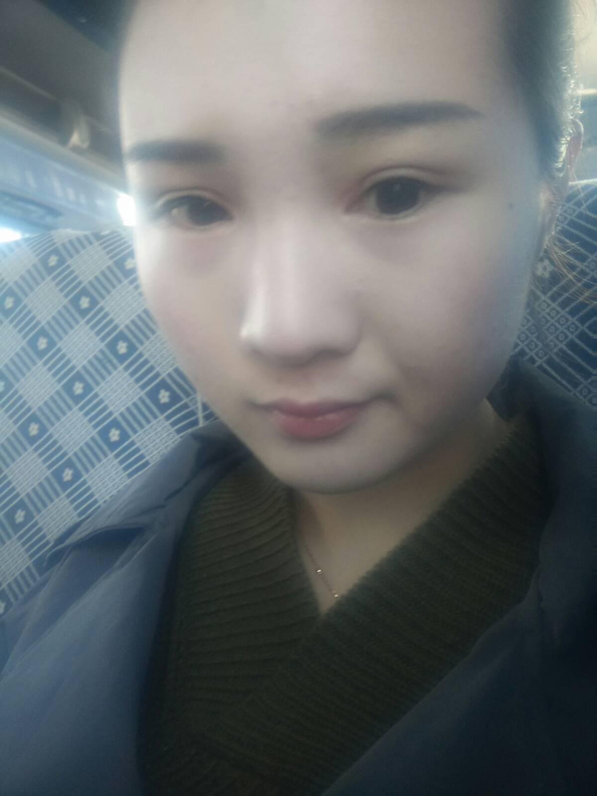 肿泡眼下垂怎么治疗,我有双眼皮,但是眼睛却不怎么好看^_^