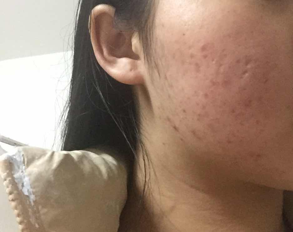 去痘印痘坑激光还是微针,没做之前左脸,有很多,皮肤很不好