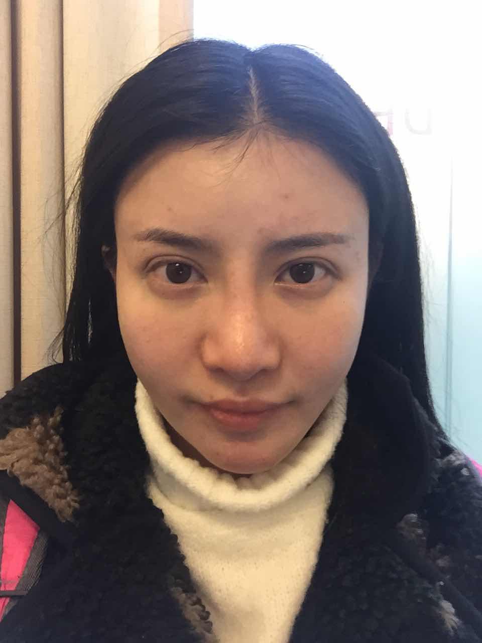 韩国双眼皮修复怎么样,看看我需要整哪里,已经做过2次割双眼皮2次隆鼻