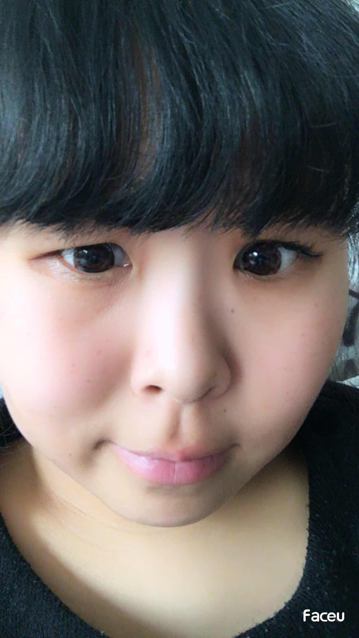 溶脂和吸脂手术哪个好,我想做吸脂,我想开眼角,我想做双眼皮,我想做鼻子,我只能想没有勇气去开刀。