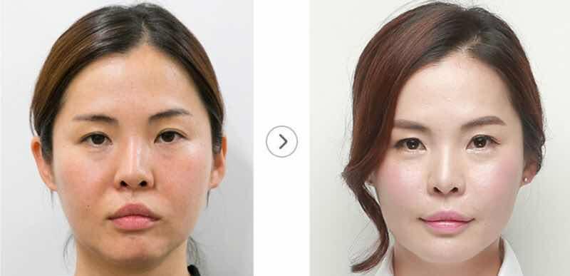 韩国自体真皮再生术,Simple自体真皮再生术最完美的改善法令纹。不开刀不手术,轻轻松松赶走法令纹。