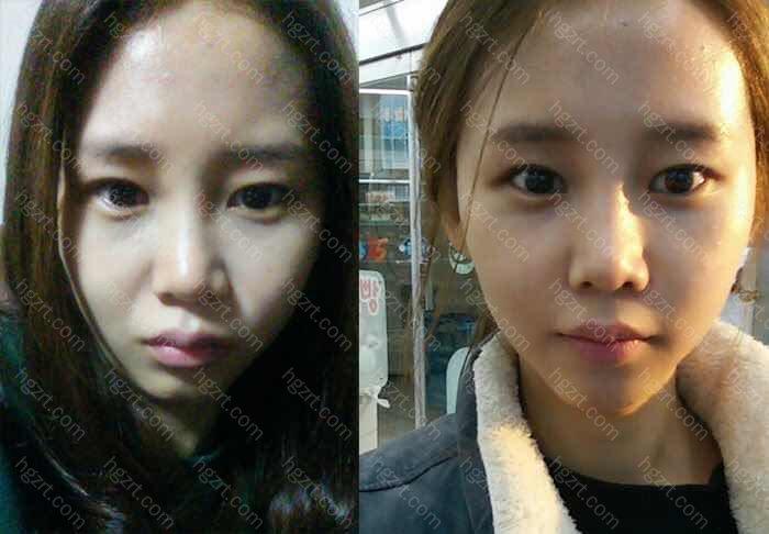 韩国自体真皮再生术