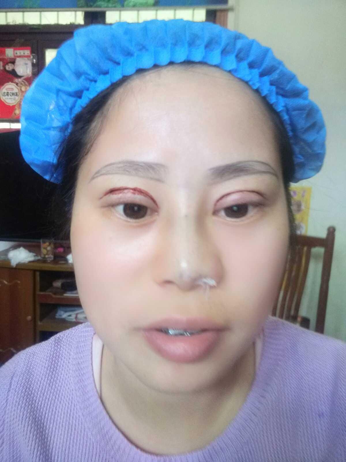鼻子微整形效果好吗,刚刚完成眼睛鼻子  开始设计眉型