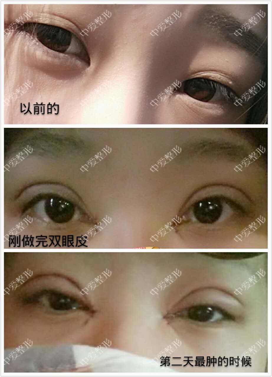 双眼皮拆线多少钱,小美女2月6号做的双眼皮+开眼角,13号来拆线啦。给我们反馈她每天都拍照记录恢复过程,