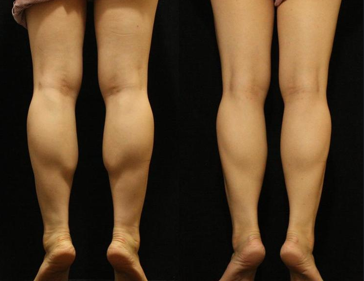 小腿肌肉缩小术多少钱,韩国美佳整形医院小腿缩小术活动中